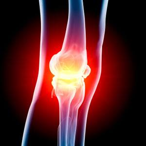 Anterior Knee Pain Houston, Woodlands, Bellaire Knee Pain Houston
