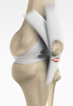 Patella Tendon Rupture